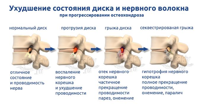Болит в левом боку и отдает в спину слева